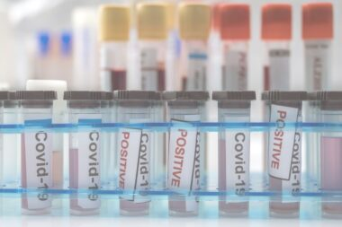 vials-with-samples-of-sars-cov-2-covid-19-in-a-res-SWEBX3K1